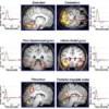 Scoperto il gene guida che mantiene equilibrio e udito anche quando dormiamo