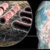 Tecnica italiana laparoscopica per il prolasso utero genitale