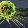 Cancro allutero individuato da ecografia ad ultrasuoni