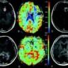 Leucemia linfoblastica acuta philadelphia positiva: nel midollo del paziente, linfociti T che salvano